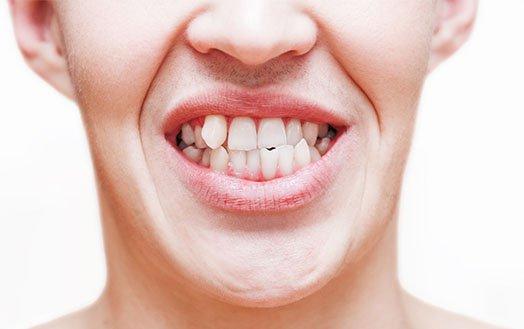 Crooked Tooth Treatment Cheltenham