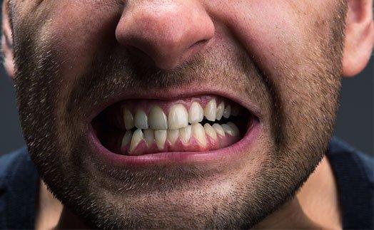 Teeth Grinding Treatment Cheltenham