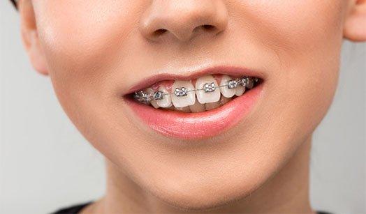 How Braces Align Teeth Cheltenham