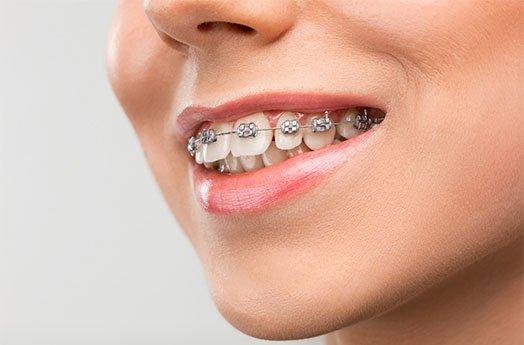 Orthodontics Cheltenham