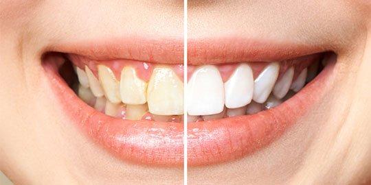 Teeth Whitening Blurb Cheltenham