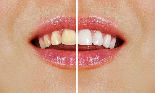 Teeth Whitening Cheltenham