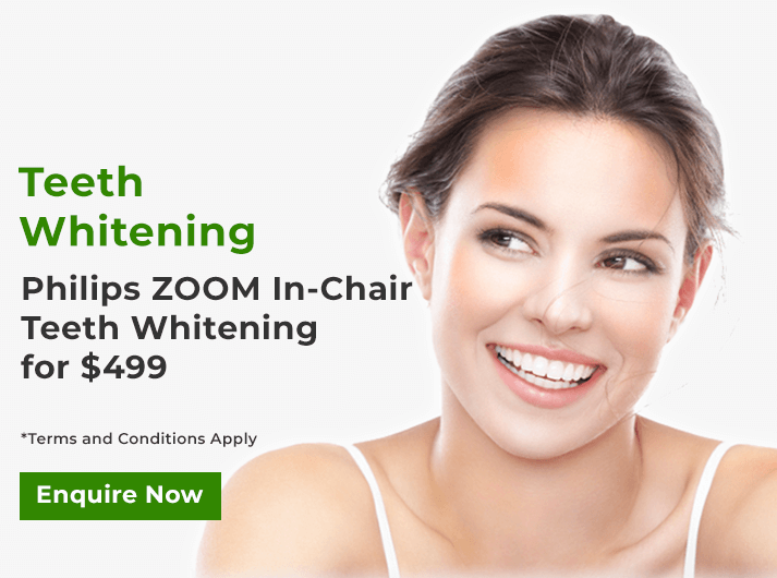 philips zoom in-chair teeth whitening banner cheltenham