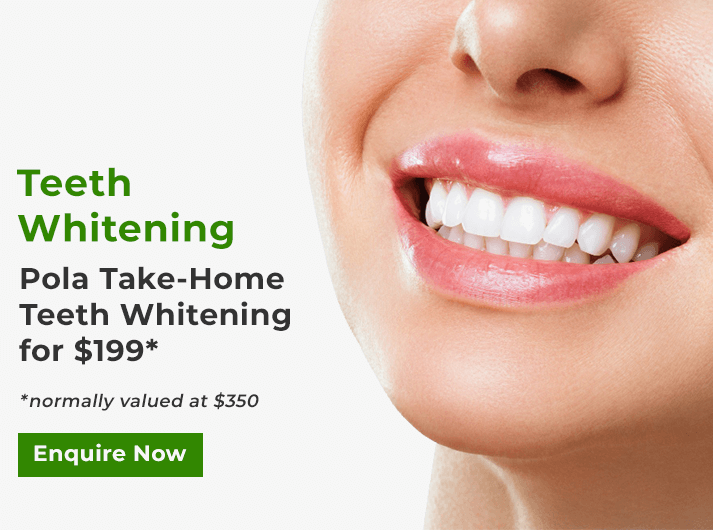 pola teeth whitening banner cheltenham