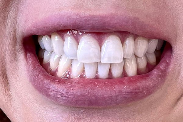 teeth whiteninge after case 1
