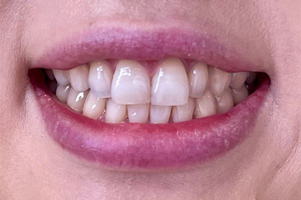 teeth whiteninge before case 1