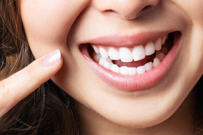 the solution teeth whitening cheltenham