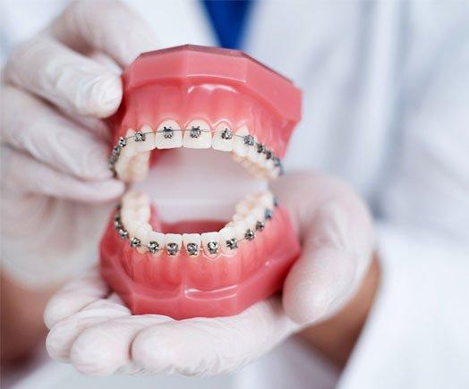 crooked tooth solution cheltenham