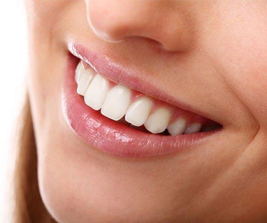 discoloured tooth solution cheltenham