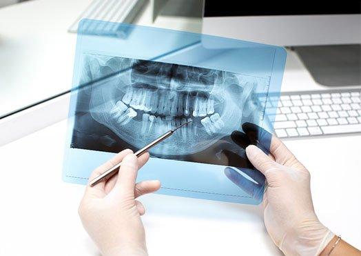 preparation for dental x-rays cheltenham