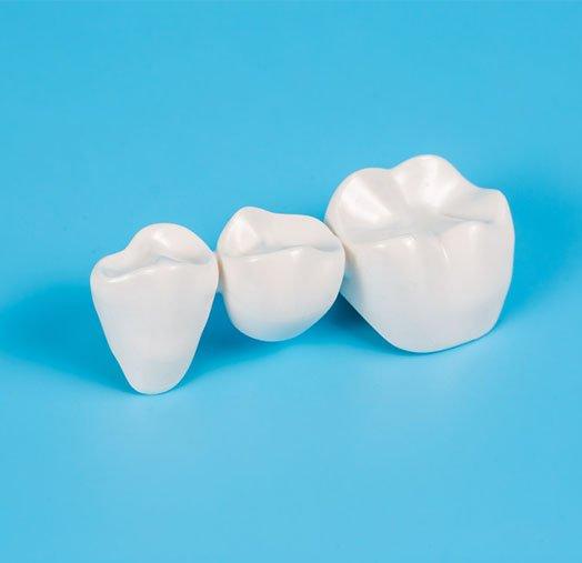 tooth wear treatment cheltenham