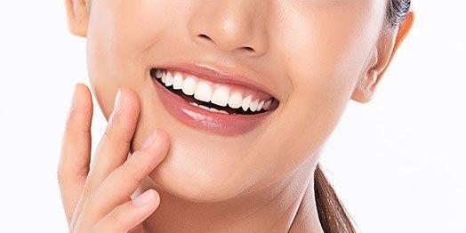 dental bonding cheltenham